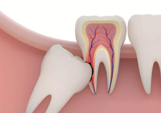 Сложное удаление верхнего зуба мудрости