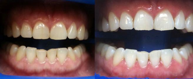 отбеливание зубов boost отзывы