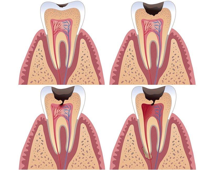 тут картинки пульпита зуба болезнью пока